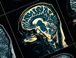 ABD'de çarpıcı 'alzheimer' araştırması!