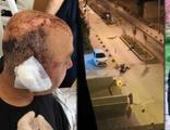 Polisin kafasını telsizle parçalamıştı! İşte istenen ceza...