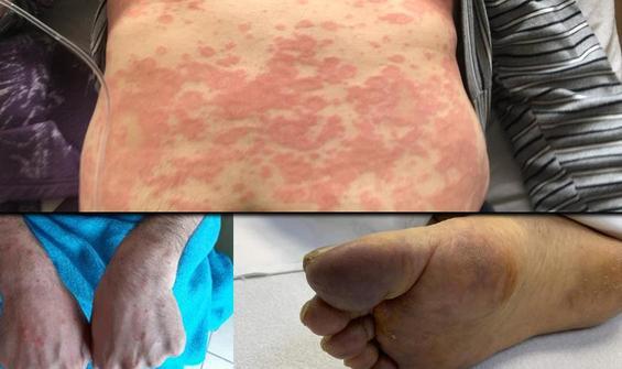 Cerrahpaşa'daki koronavirüs hastaları ilgili önemli çalışma!