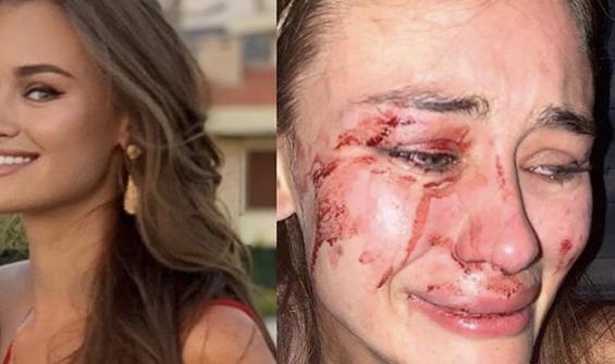 Dünyaca ünlü model Türkiye'de saldırıya uğradı