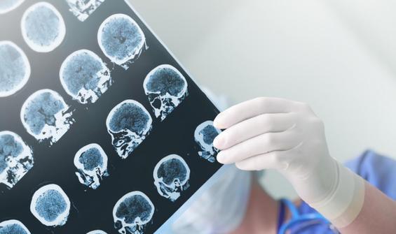 Beyin tümörünün habericisi! Bu belirtilere dikkat
