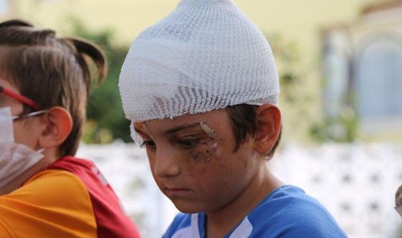 Kangal dehşeti! 8 yaşındaki Batuhan ölümden döndü