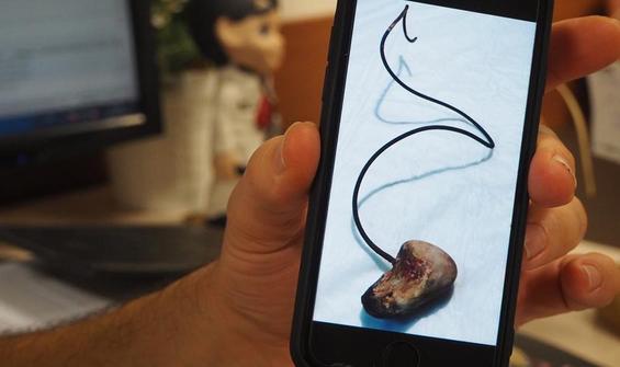 Ameliyatta unutulan 28 cm'lik katater operasyonla çıkarıldı