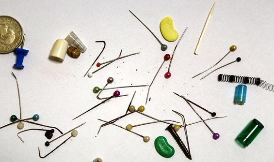 Göğüs cerrahından 'yutulan cisimler' koleksiyonu