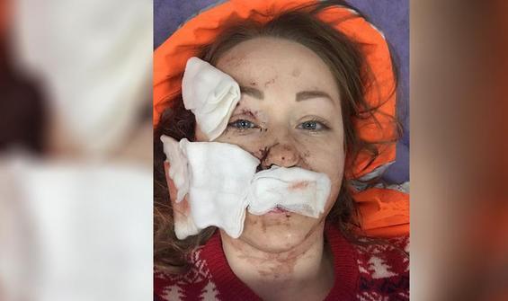Ukraynalı eşine falçatayla saldıran koca tutuklandı