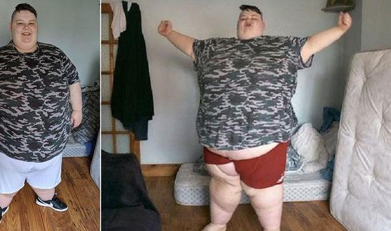 """Cinsiyet değiştirmek isteyen kadına """"260 kiloluk"""" engel"""