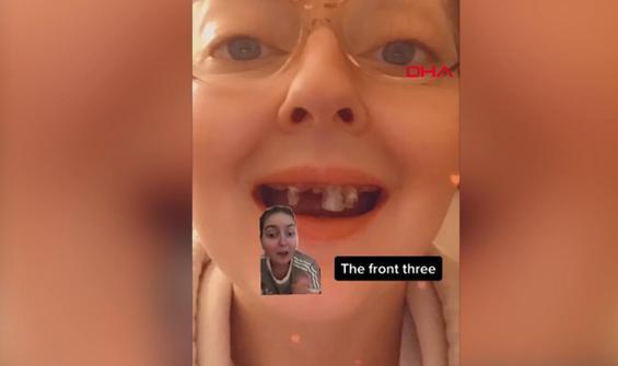 Gazlı içecekler nedeniyle dişlerini kaybetti