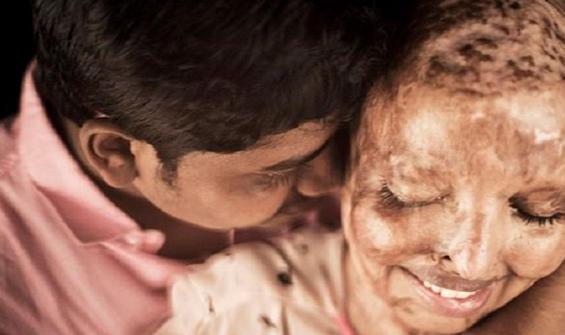 Asitli saldırıya uğramıştı, gerçek aşkı buldu