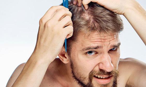 Kronik stresin neden saç döktüğü anlaşıldı