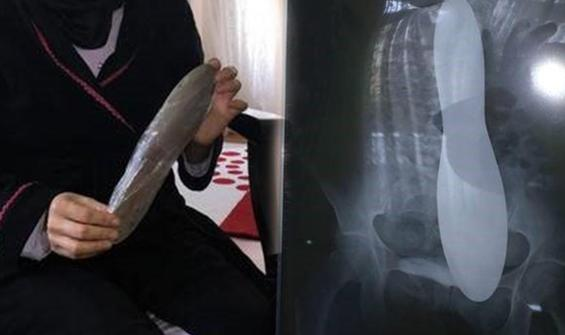 Ameliyat ettikleri hastanın karnında mala unuttular!