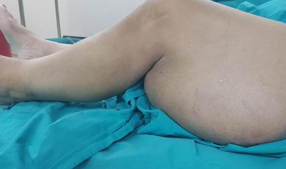 Korona nedeniyle hastaneye gitmedi, bacağı bu hale geldi