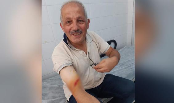 Belediye başkanı kurban keserken yaralandı