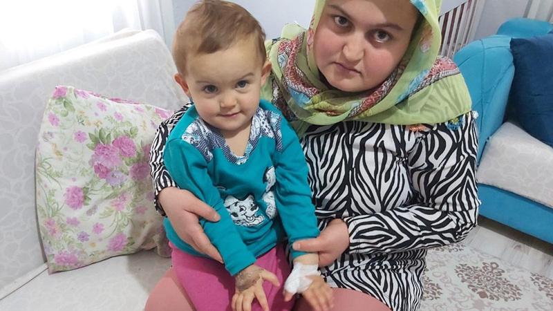 3 yaşındaki İclal Berna'nın yanlış parmağı ameliyat edildi