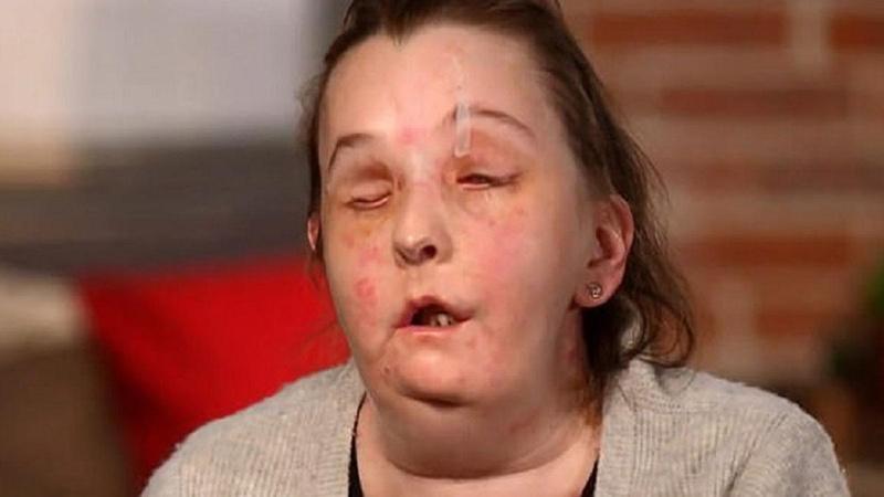 Şiddet mağduru kadın yüzünü ilk kez gösterdi