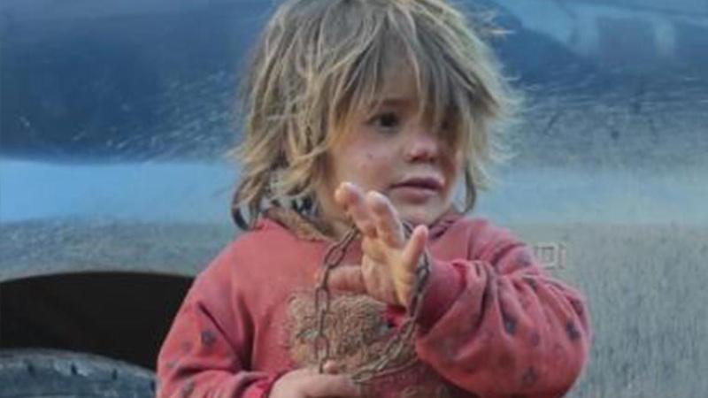 Zincire vurulan küçük Nahla açlıktan hayatını kaybetti