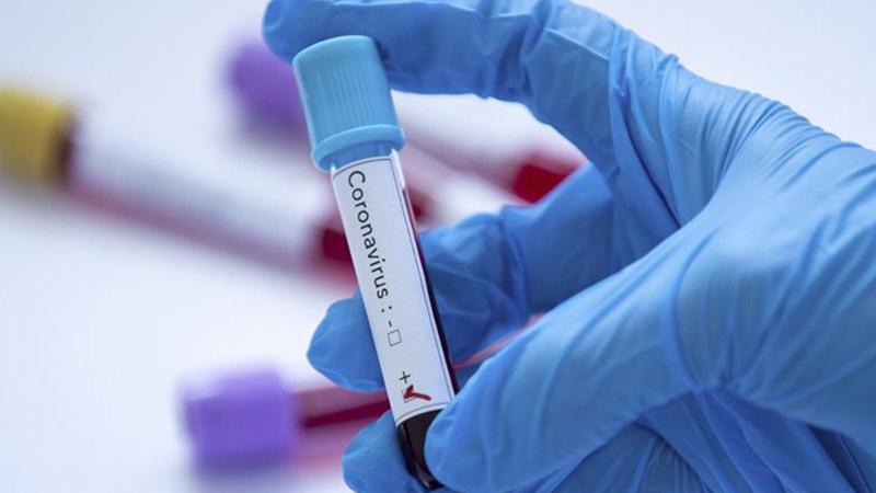 23 Ağustos koronavirüs tablosu! 232 kişi hayatını kaybetti