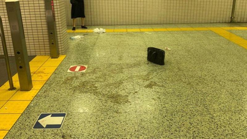 Metroda asitli saldırı dehşeti!