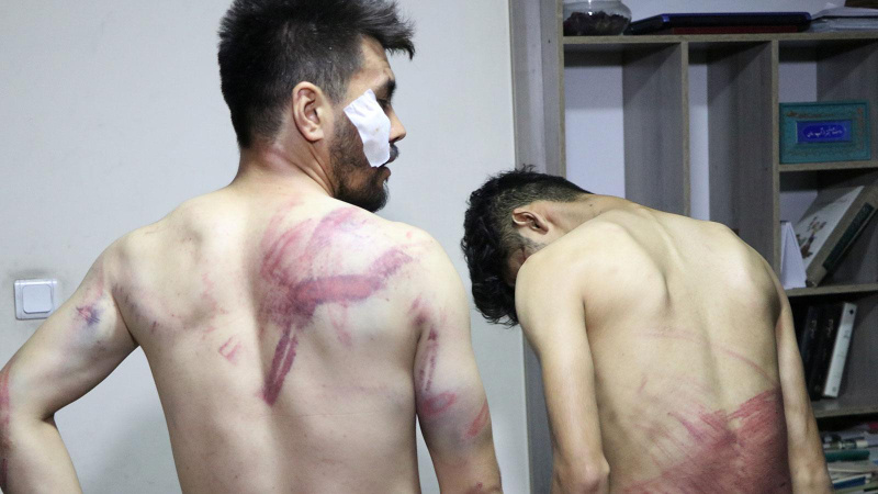 Taliban'dan gazetecilere kırbaçlarla öldüresiye işkence!