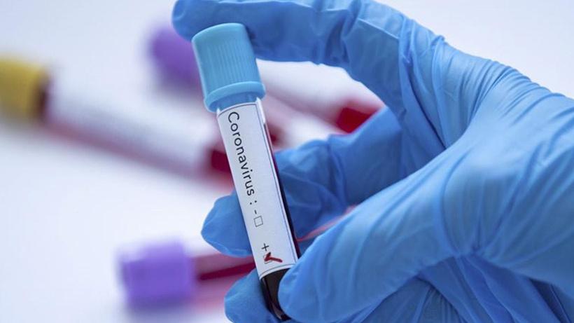 Sağlık Bakanı Koca 23 Ağustos koronavirüs tablosunu açıkladı