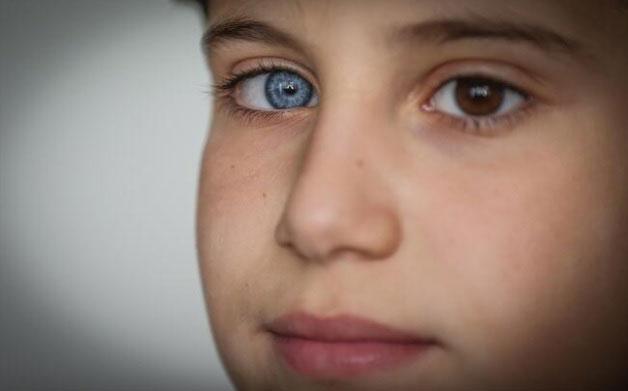 Mavi ve kahverengi göze sahip kardeşleri görenler şaşkınlığa uğruyor - Resim: 1