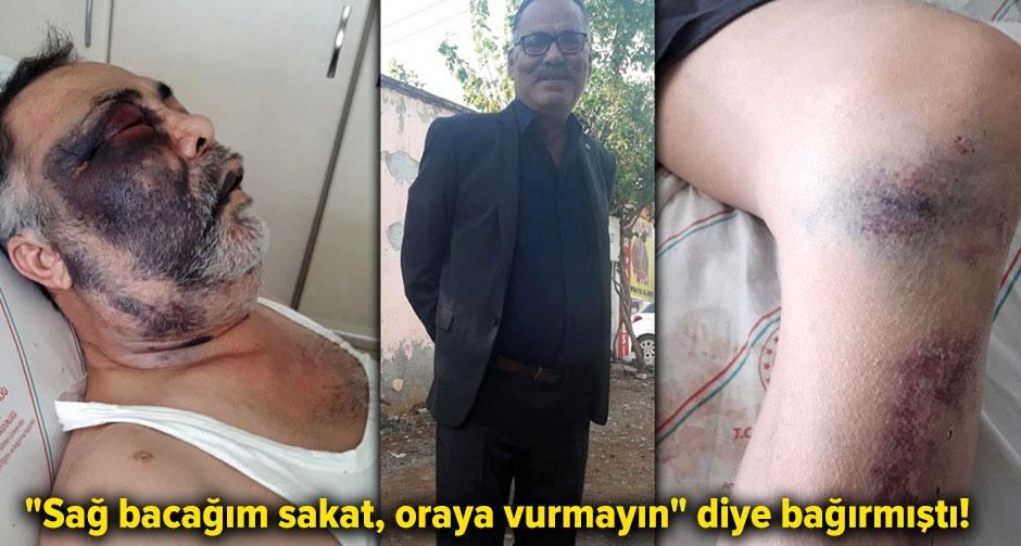 Acımasızca dövülen engelli Mümin Kara yaşamını yitirdi